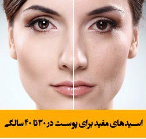 اسیدهای مفید برای پوست در 30 تا 40 سالگی