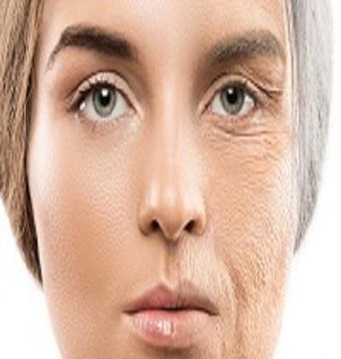کلاژن چیست و چه فوایدی برای بدن و پوست دارد؟